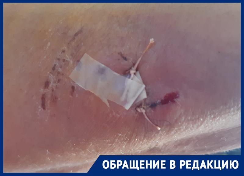 «Швы наложили в трех местах»: в Астраханской области собаки продолжают нападать на людей